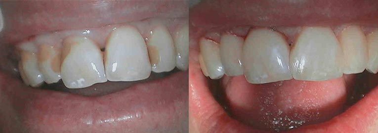 Before and After Gallery, Composite Fillings