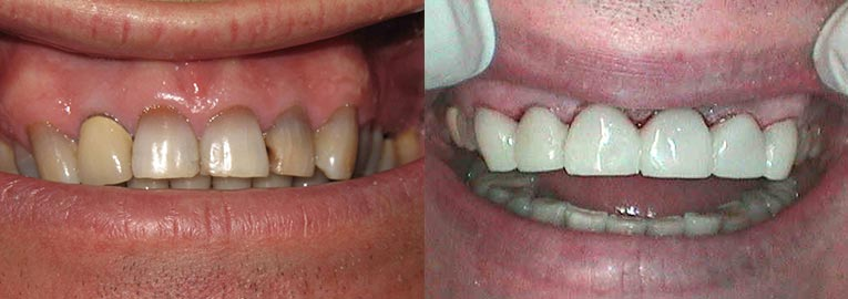 Crowns, Before and After Smiles