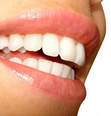 Seattle Teeth Whitening